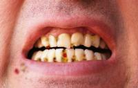 smfruitcake-teeth